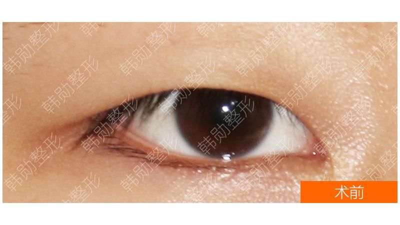 眼睛明亮有神,是漂亮的基础-【韩勋院长官网】韩勋双眼皮修复_北京韩勋整形_韩勋眼鼻整形修复