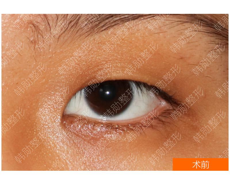具有代表性的单睑如何设计手术-【韩勋院长官网】韩勋双眼皮修复_北京韩勋整形_韩勋眼鼻整形修复