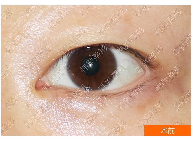 重睑弧线对眼睛亲和力的影响-【韩勋院长官网】韩勋双眼皮修复_北京韩勋整形_韩勋眼鼻整形修复