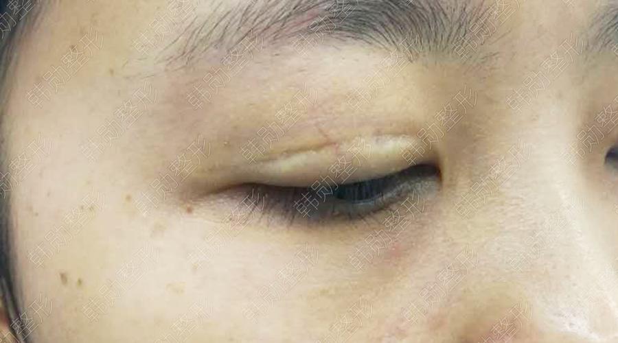 粘连与瘢痕-【韩勋院长官网】韩勋双眼皮修复_北京韩勋整形_韩勋眼鼻整形修复
