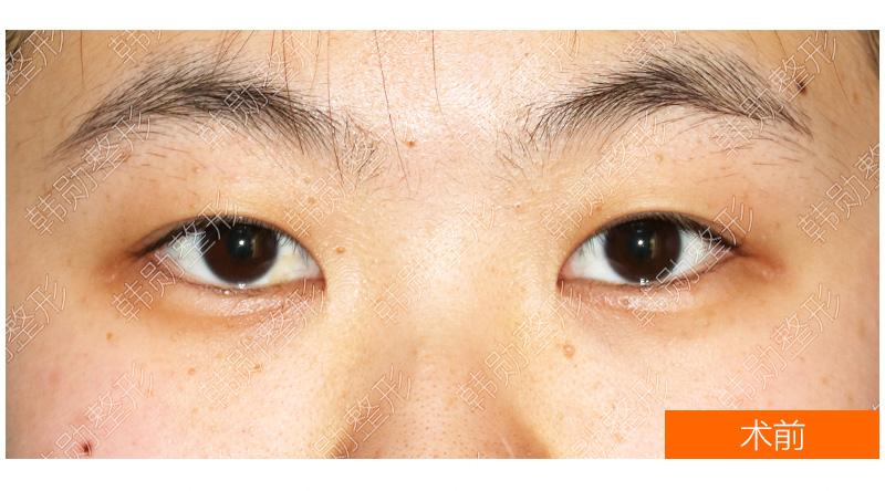 突显年轻的明眸善睐-【韩勋院长官网】韩勋双眼皮修复_北京韩勋整形_韩勋眼鼻整形修复