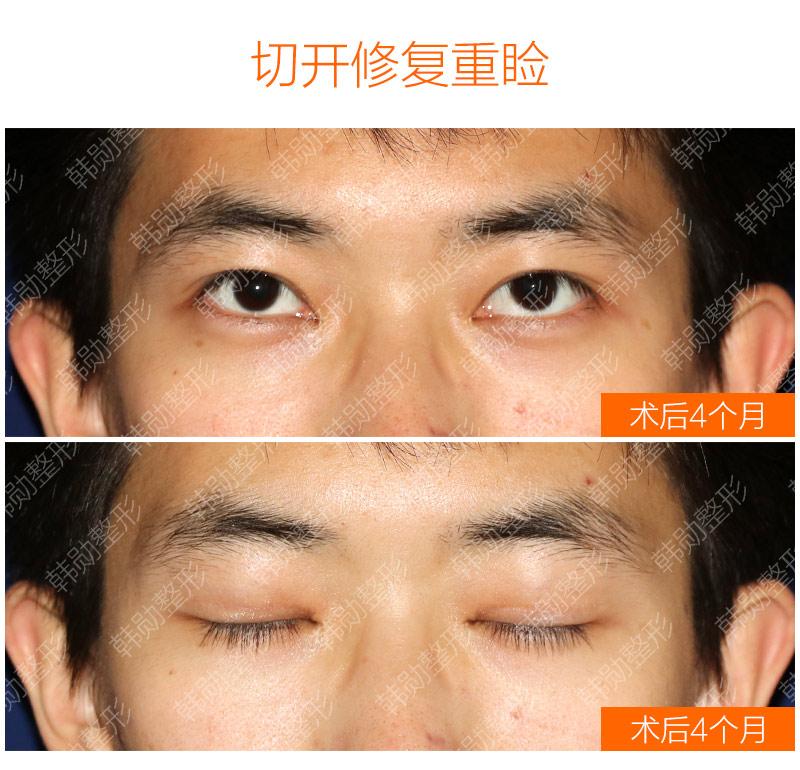 双眼皮怎样才显得有精神?-【韩勋院长官网】韩勋双眼皮修复_北京韩勋整形_韩勋眼鼻整形修复