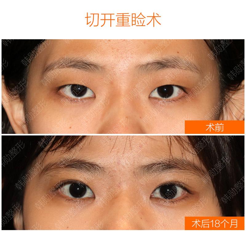 双眼皮恢复一年以上是什么样-【韩勋院长官网】韩勋双眼皮修复_北京韩勋整形_韩勋眼鼻整形修复