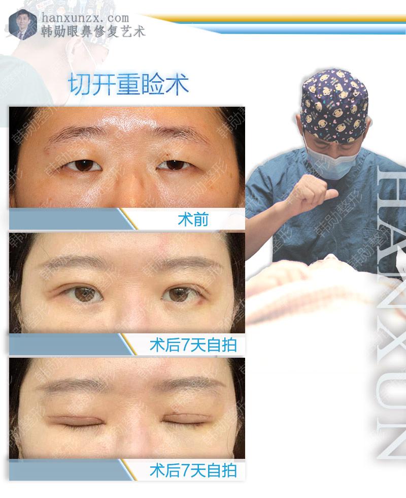 小眼睛的术后变化-【韩勋院长官网】韩勋双眼皮修复_北京韩勋整形_韩勋眼鼻整形修复